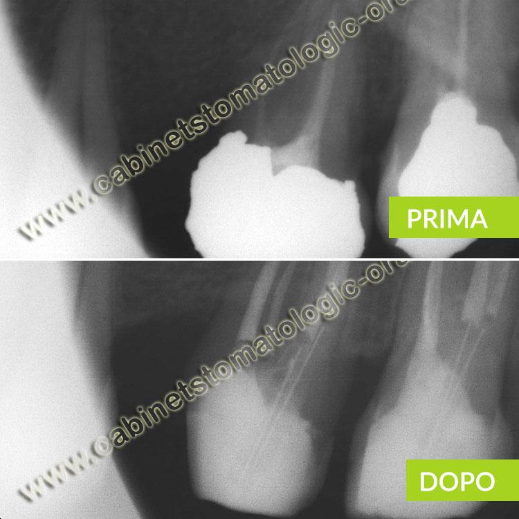 Otturazione endodontica incompleta