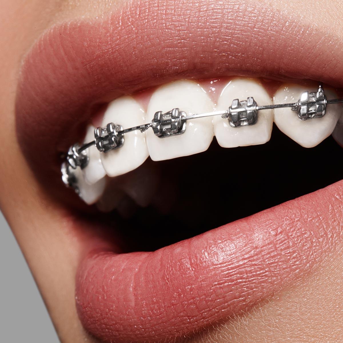 ortodontie oradea