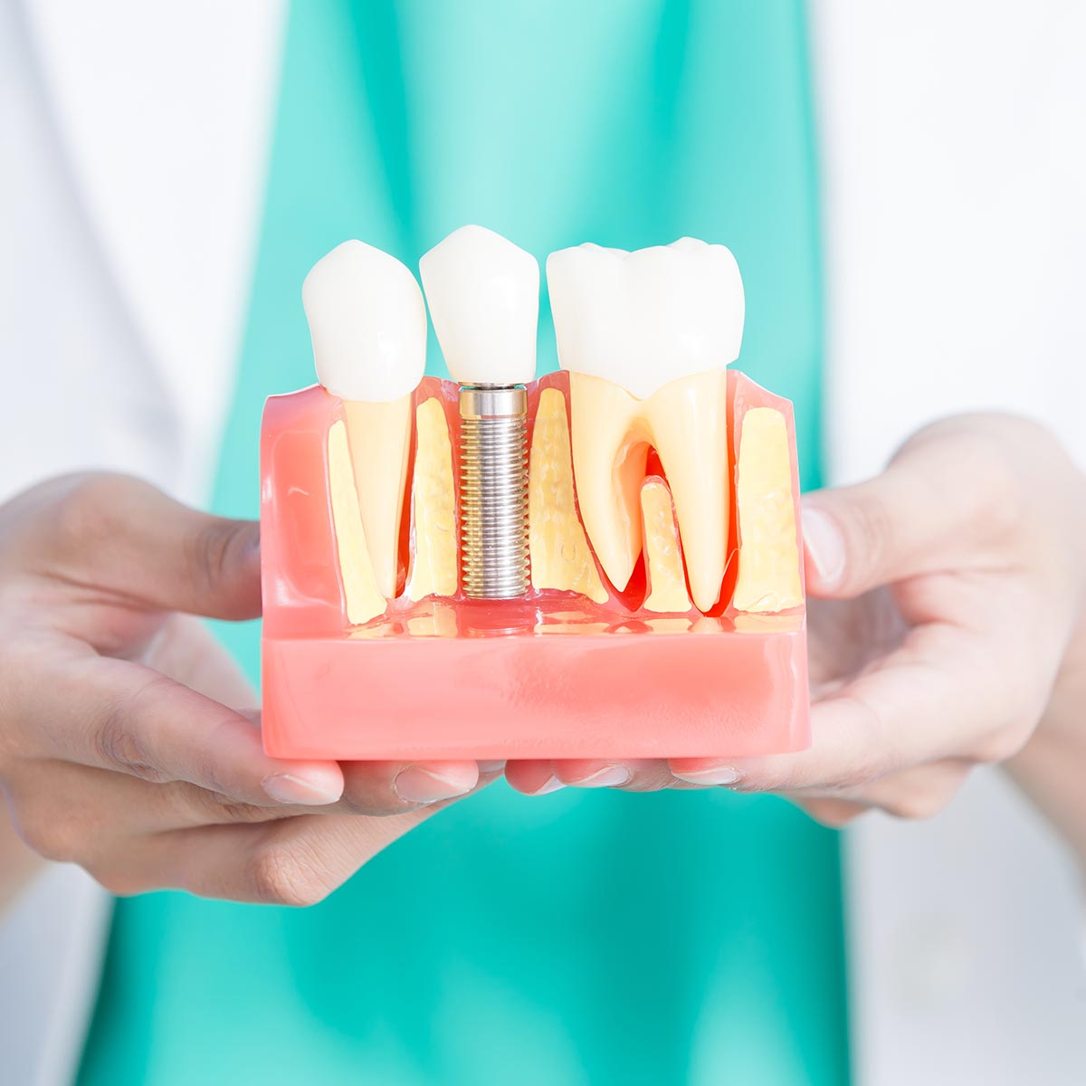 Implanturi dentare - chirurgie dento alveolară