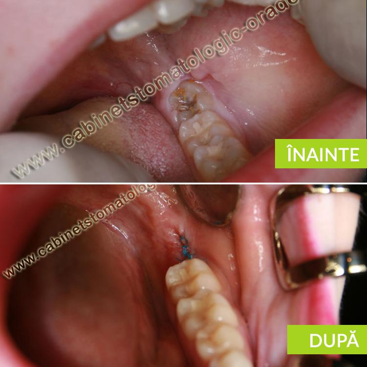 caz clinic molar de minte partial erupt cariat extractie prp