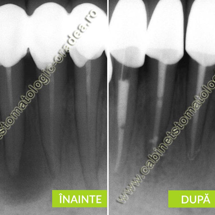 chist mandibular datorat unor obturatii endodontice incorecte