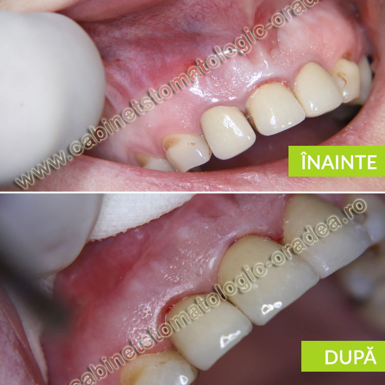 caz clinic fractura radacinii incisivului lateral superior