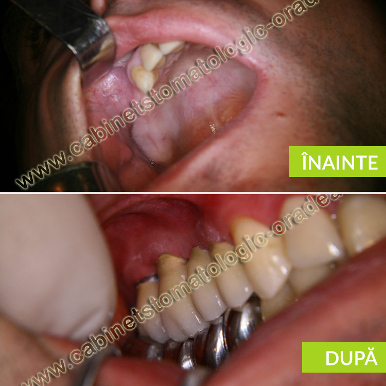 caz clinic distructia masiva a molarilor superiori lifting sinus prp