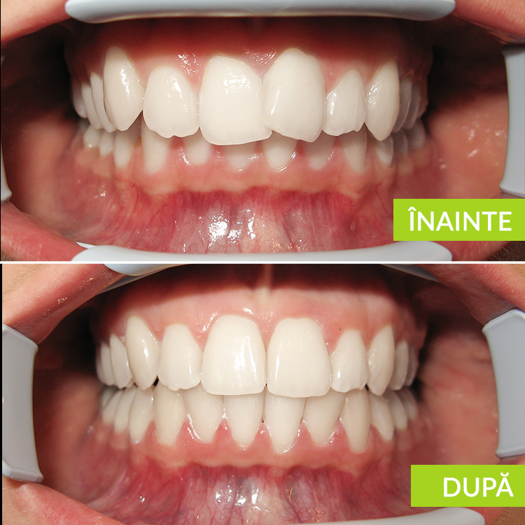 Dizarmonie dento-maxilara cu inghesuire