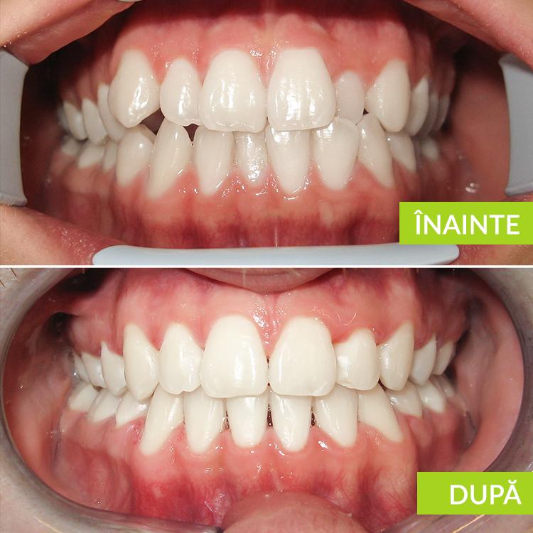 Dizarmonie dento-maxilara cu inghesuire caz